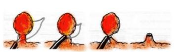 Polipectomia di polipo peduncolato