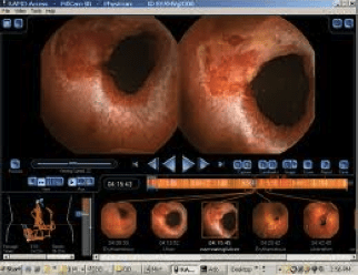 Video Capsula Endoscopica