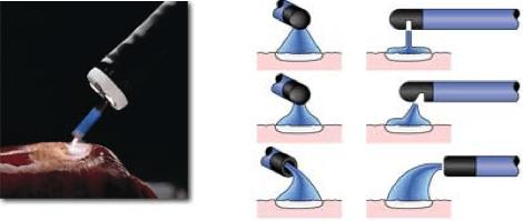 Applicazione della corrente di argon