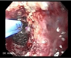 MUCOSECTOMIA: Polipo colon