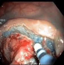 Idrodissettore endoscopico