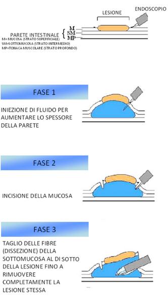 dissezione endoscopica sottomucosa